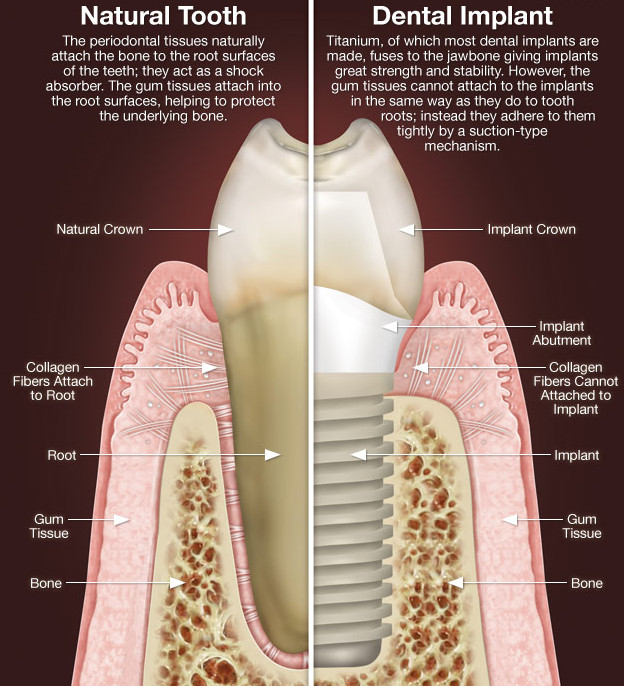 Implant Dentistry Roswell GA