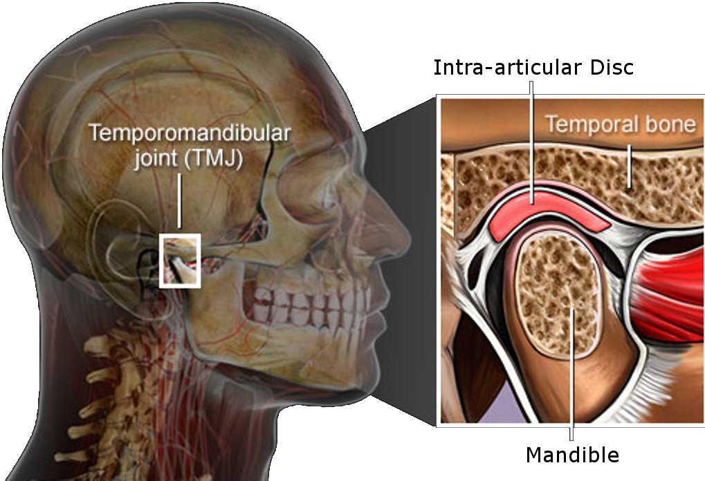 TMJ Disorder treatment Roswell GA