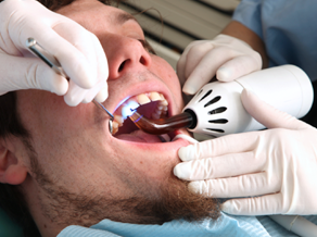 Dental Bonding Roswell GA